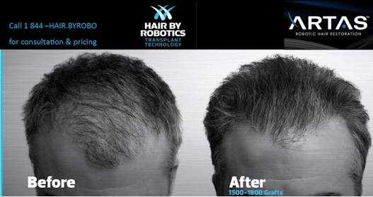What is best and latest technology hair transplant in India?