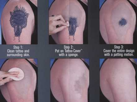 How We can Remove a Permanent Tatoo?