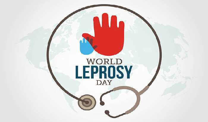 The World Leprosy Day was observed on?
